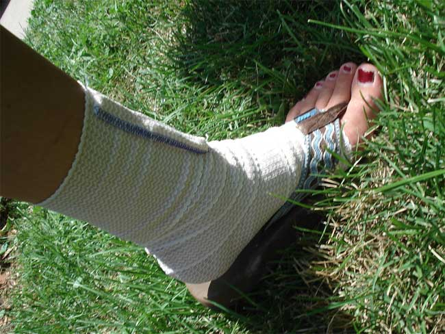 Sprained Ankle Easily